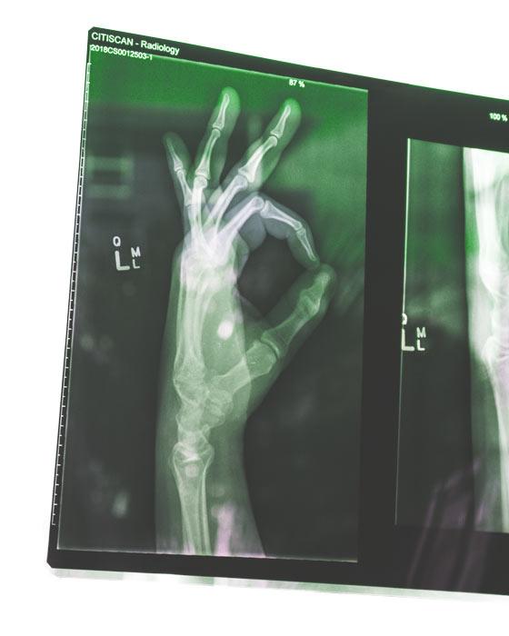 healing-the-hand-radiology-final